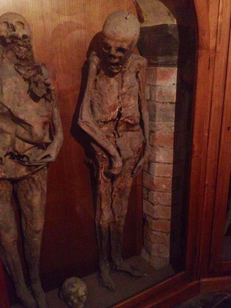 Da sinistra, la donna poliomelitica e quella morta in seguito ad un parto cesareo